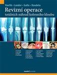 Obálka knihy Revizní operace totálních náhrad kolenního kloubu